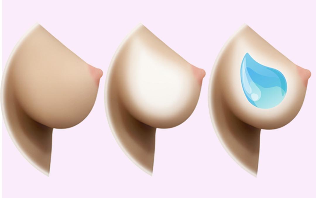 Skal du vælge faste bryster, hule bryster eller bryster med gel?